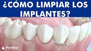 Seda dental e Irrigador - Métodos de limpieza de implantes ©