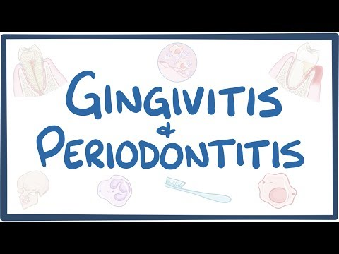 Gingivitis and periodontitis - causes, symptoms, diagnosis, treatment, pathology