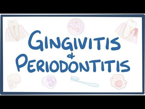 Gingivitis And Periodontitis - Causes, Symptoms, Diagnosis, Treatment, Pathology