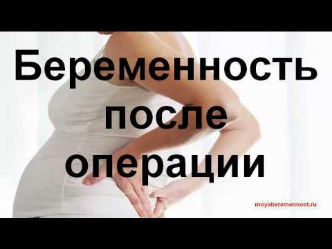 Беременность после операции