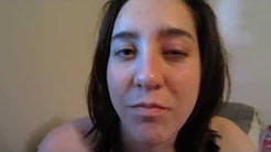 My stye/chalazion and how I am treating it