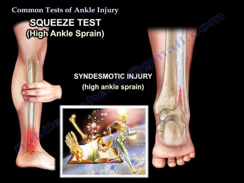 Ankle Examination Ankle Sprain Ankle Pain Everything You Need To