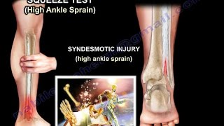 Ankle examination ,ankle sprain ,ankle pain - Everything You Need To Know - Dr. Nabil Ebraheim