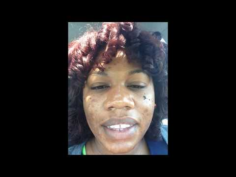 Minocycline and acne progress - YouTube