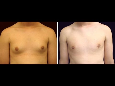 how to get rid of moobs fast without surgery