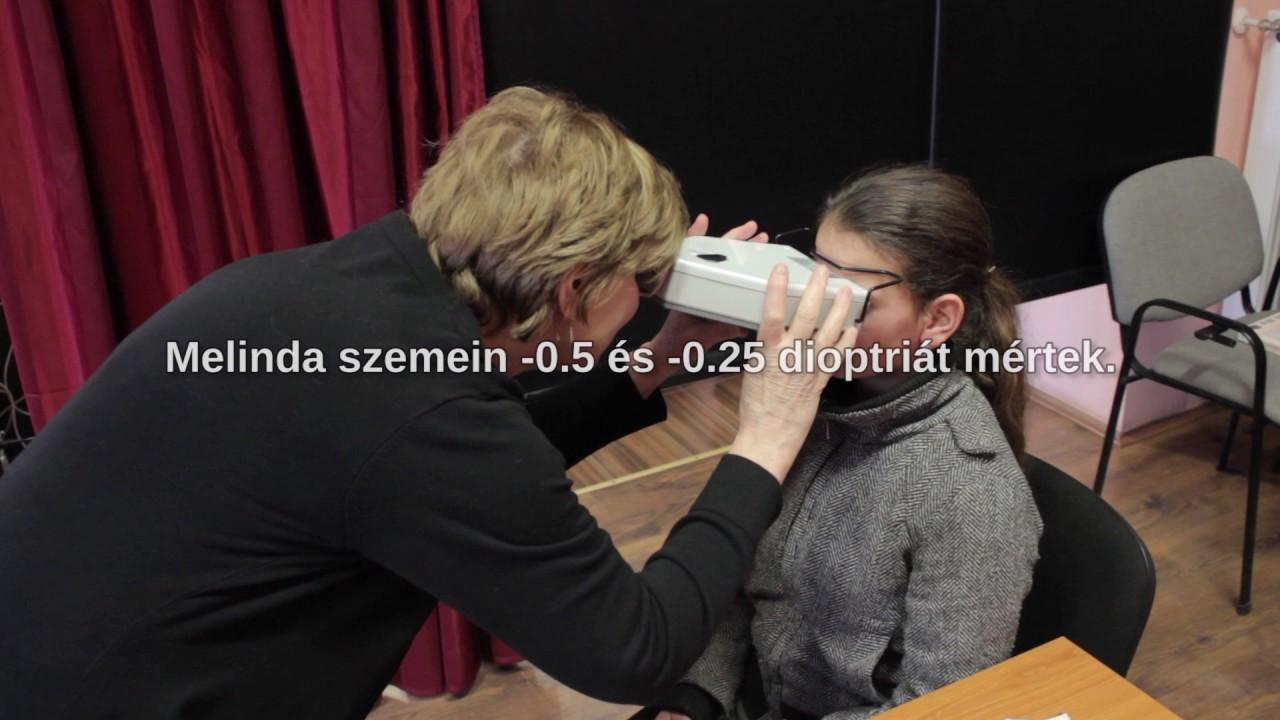 noginsk látásvizsgálat