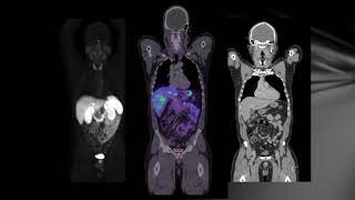Imaging in Neuroendocrine Tumours: Dr Jane Reeve (Auckland DHB)