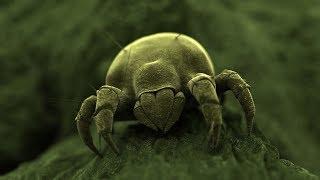 Angriff der Plagegeister - Milben, die unsichtbaren Kannibalen 5 von 5