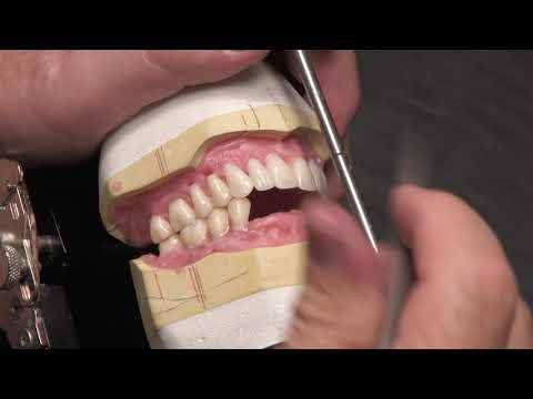 Setting Artic Teeth