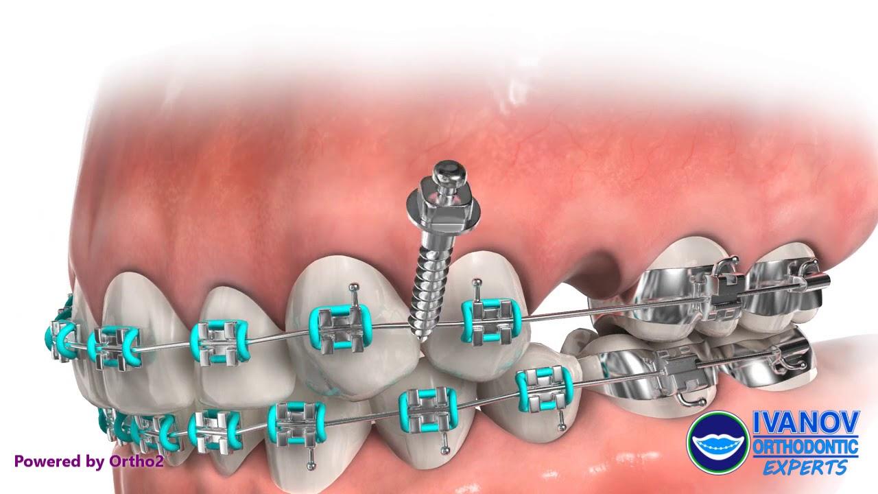 Orthodontic TAD for Mesializing Upper Molar