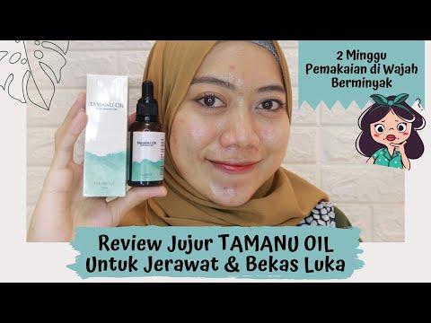 Review Jujur TAMANU OIL Untuk Jerawat & Bekas Luka | Oily Skin | #reviewERIN