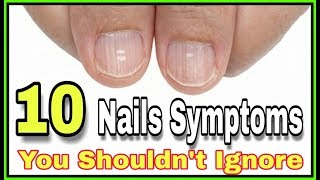 10 Nail Symptoms and What They Mean for Your Health You Shouldn't Ignore