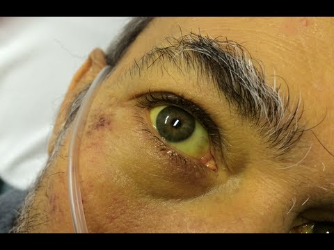 Hepatitis B Patient Eyes severe case of jaundic...