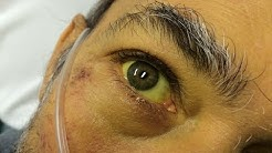 hqdefault - Kidney Disease Yellow Eyes