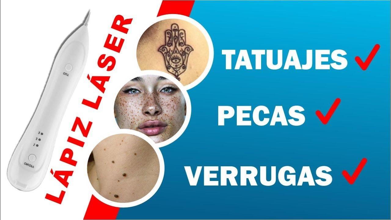 5e02c33d704b Lápiz Láser para Verrugas, Tatuajes, lunares y Pecas