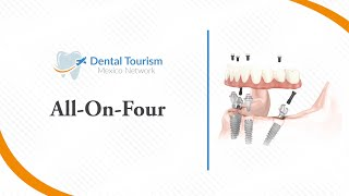 All on Four Chiapas - Dental Tourism Mexico