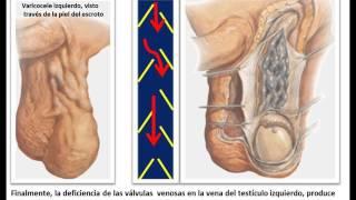 Los las testículos? causa en ¿Qué venas varicosas