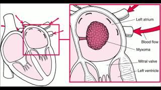 Left atrial myxoma mp3 indir