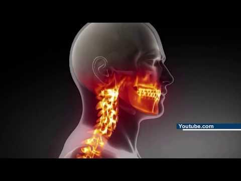 что такое остеохондроз его причины