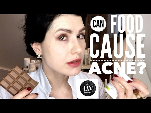 Food and acne connection Is it a myth or a fact that food can cause acne? Dr. Liv explains