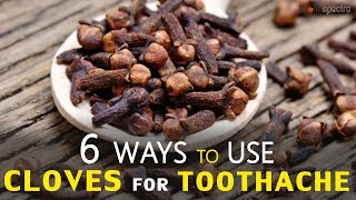 6 Ways to Use Cloves for Toothache