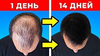 10 Способов Как Быстро Отрастить Волосы
