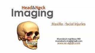 Imaging of Maxillofacial trauma - DRE 11 - Dr Mamdouh Mahfouz