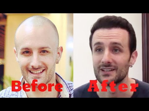 David DiMuzio Hair Transplant Experience with Dr  McGrath   Austin, TX