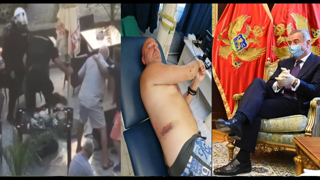 TOP A1 BUDVA: POLICIJA PREBILA RADETIĆA, OŠTEĆEN MU VID I BUBREZI #KNEŽEVIĆ: MILO SE BOJI LITIJA