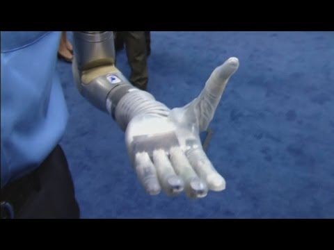 Amazing science! New robotic arm helps wounded US soldiers