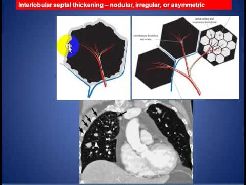 Radiology Rounds 14 Reticular Pattern of Secondary Pulmonary Lobule ...