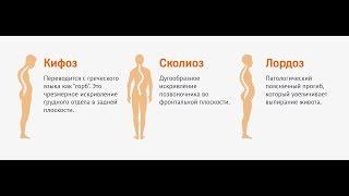 видео ЛФК при сколиозе у детей: комплекс упражнений для разных степеней искривления