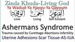 Ashermans Syndrome say Shifa
