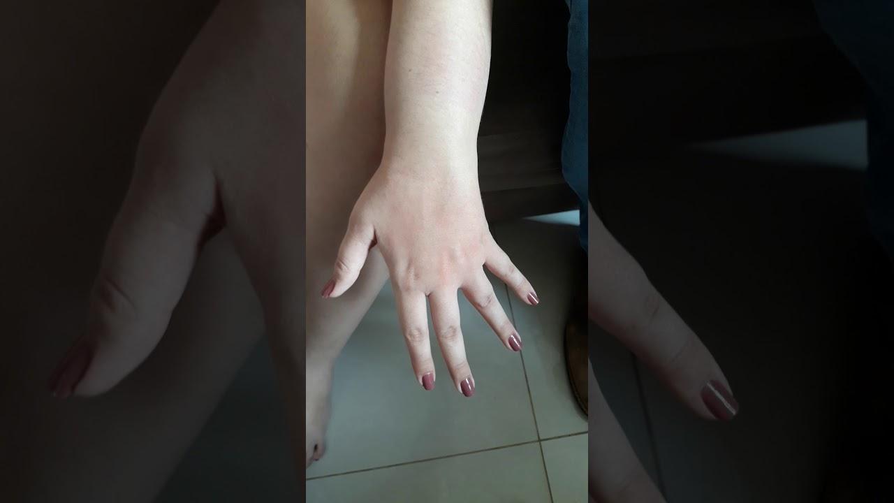 Mão com AVC RECUPERADA.(4)