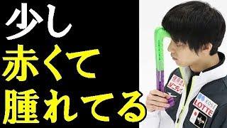 【羽生結弦】羽生結弦が右手小指にの腫れについて言及。右手小指の腫れは「演技に影響ない」「まだ少し赤くて腫れてるね」#yuzuruhanyu 羽生結弦 検索動画 25