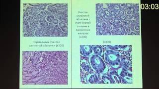 П22 Случай хеликобактерного гастрита с высоким содержанием эозинофилов   Ефимова Е И