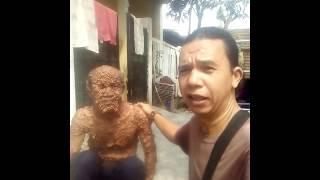 Pengidap kanker kulit