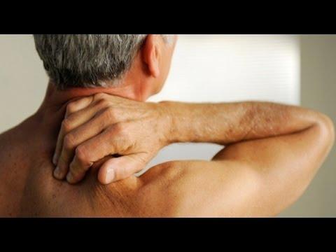 Болезни шеи и их лечение: остеохондроз, миозит, прострел