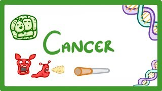 GCSE Biology - What is Cancer? 'Benign' and 'Malignant' Tumours Explained  #23