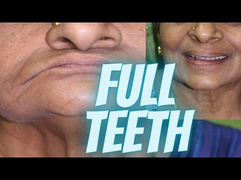 teeth-filling-treatment---from-no-teeth-to-functional-teeth-in-5-days