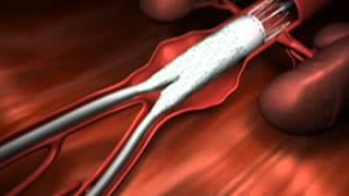 Aneurisma adalah pengelembungan pembuluh darah, dimana pada tahap awal seseorang sulit untuk menyada.