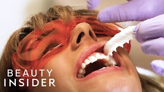 The Fastest Way Dentists Whiten Teeth | Beauty Explorers