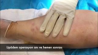 Lipödem Operasyon Anı ve Hemen Sonrası - Ahmet Karacalar Prof. Dr.