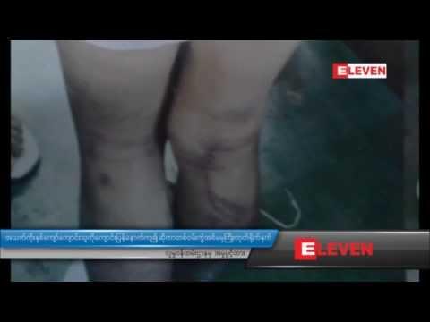 Myanmar News 3 - June 29 2013: အသက္ကိုးႏွစ္ေက်ာ္ ေက်ာင္းသူကို ေက်ာင္းျပန္ေနာက္က်၍ဆိုကာ တစ္၀မ္းကြဲအမမွ ႀကိဳးတုပ္ရိုက္ႏွက္၊ လူမႈ၀န္ထမ္းဌာနမွ အမႈဖြင့္ထား