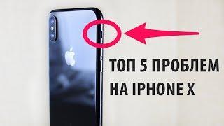 ТОП 5 БОЛЬШИХ ПРОБЛЕМ НА iPhone X