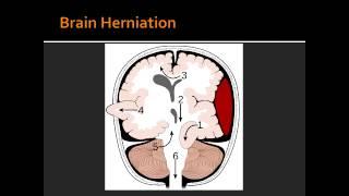 Intracranial Hemorrhage - Epidural Hematoma