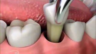 Последствия удаления зуба(Оглавление: 1. 0:13 Опухает щека после удаления зуба. 2. 1:17 Боль в десне после удаления зуба. 3. 1:56 Сколько зажив..., 2015-08-03T08:03:05.000Z)