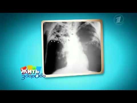 Туберкулез легких. Симптомы и признаки туберкулеза легких