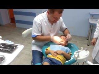 ребенку ( 3,5 года) лечат зубы(молдова,кишинев. ребенку ( 3,5 года) лечат зубы процедура называется герметизация фиссур., 2013-07-23T21:02:21.000Z)