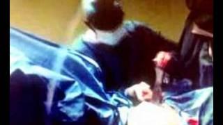 Video | phẫu thuật chuyển đổi gioi tính | phau thuat chuyen doi gioi tinh